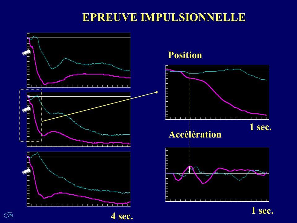 VN EPREUVE IMPULSIONNELLE 4 sec. Position 1 sec. Accélération