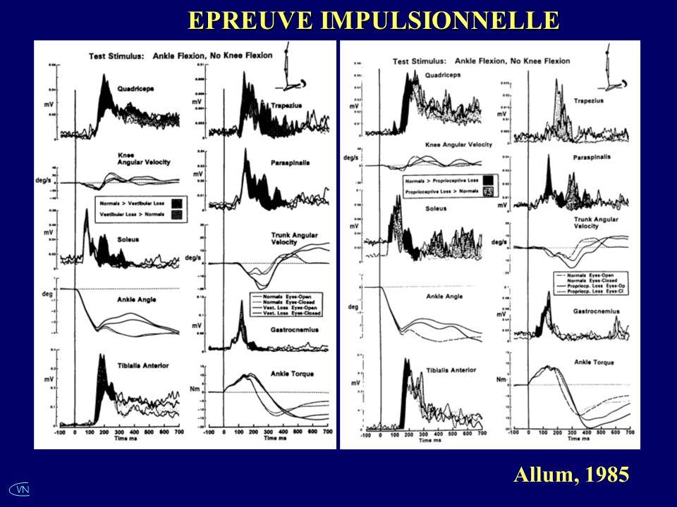 VN Allum, 1985 EPREUVE IMPULSIONNELLE