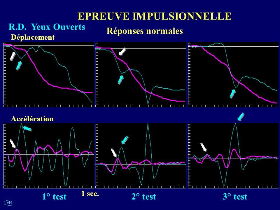 VN R.D. Yeux Ouverts Réponses normales EPREUVE IMPULSIONNELLE 1 sec. Accélération Déplacement 1° test2° test3° test