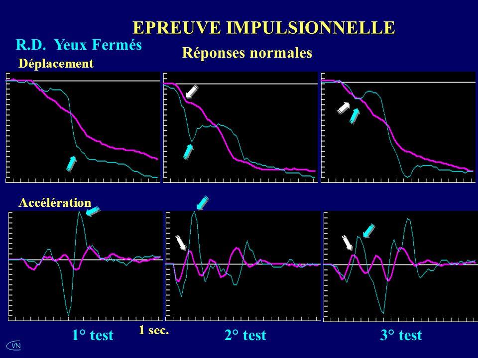 VN R.D. Yeux Fermés Réponses normales EPREUVE IMPULSIONNELLE 1 sec. Accélération Déplacement 1° test2° test3° test