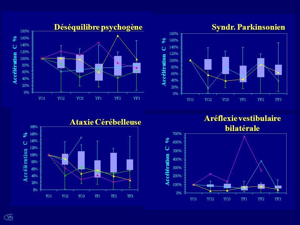 VN Déséquilibre psychogène Ataxie Cérébelleuse Syndr. Parkinsonien Aréflexie vestibulaire bilatérale