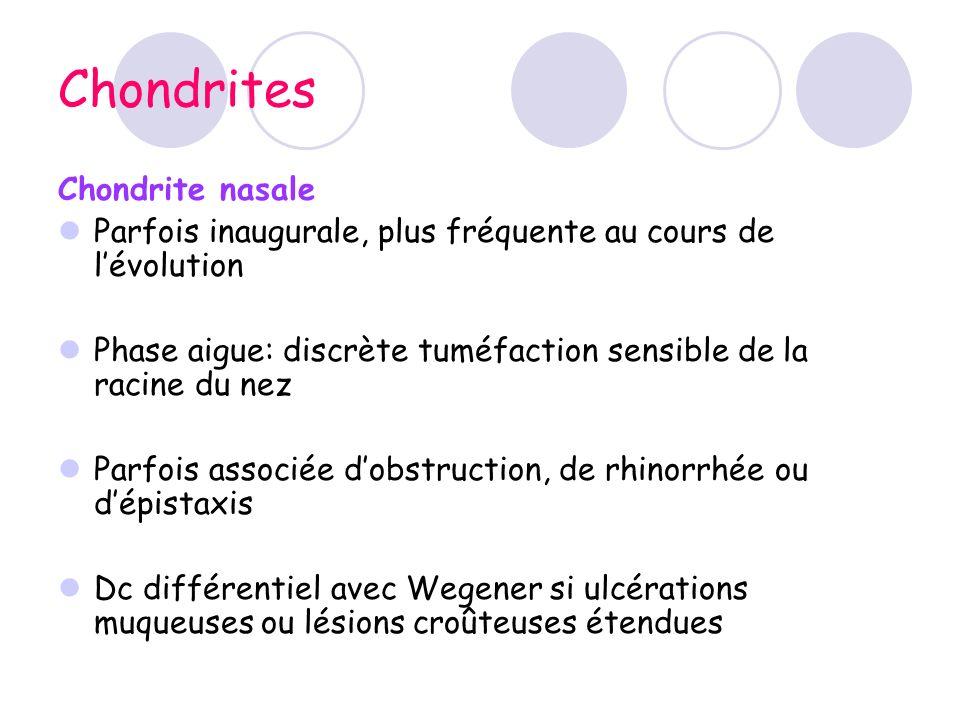 Chondrites Chondrite nasale Parfois inaugurale, plus fréquente au cours de lévolution Phase aigue: discrète tuméfaction sensible de la racine du nez P