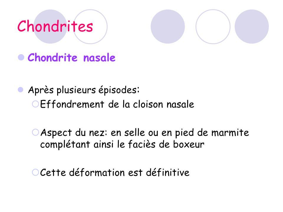 Chondrites Chondrite nasale Après plusieurs épisodes : Effondrement de la cloison nasale Aspect du nez: en selle ou en pied de marmite complétant ains