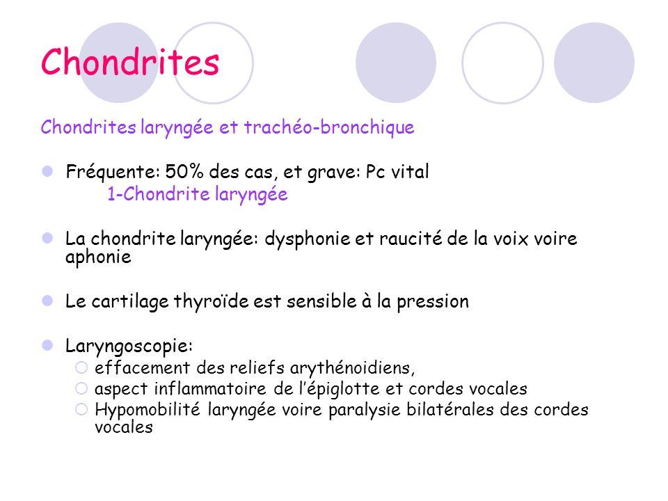 Chondrites Chondrites laryngée et trachéo-bronchique Fréquente: 50% des cas, et grave: Pc vital 1-Chondrite laryngée La chondrite laryngée: dysphonie