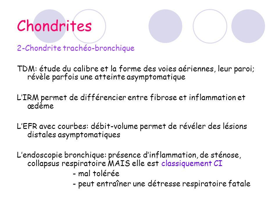 Chondrites 2-Chondrite trachéo-bronchique TDM: étude du calibre et la forme des voies aériennes, leur paroi; révèle parfois une atteinte asymptomatiqu