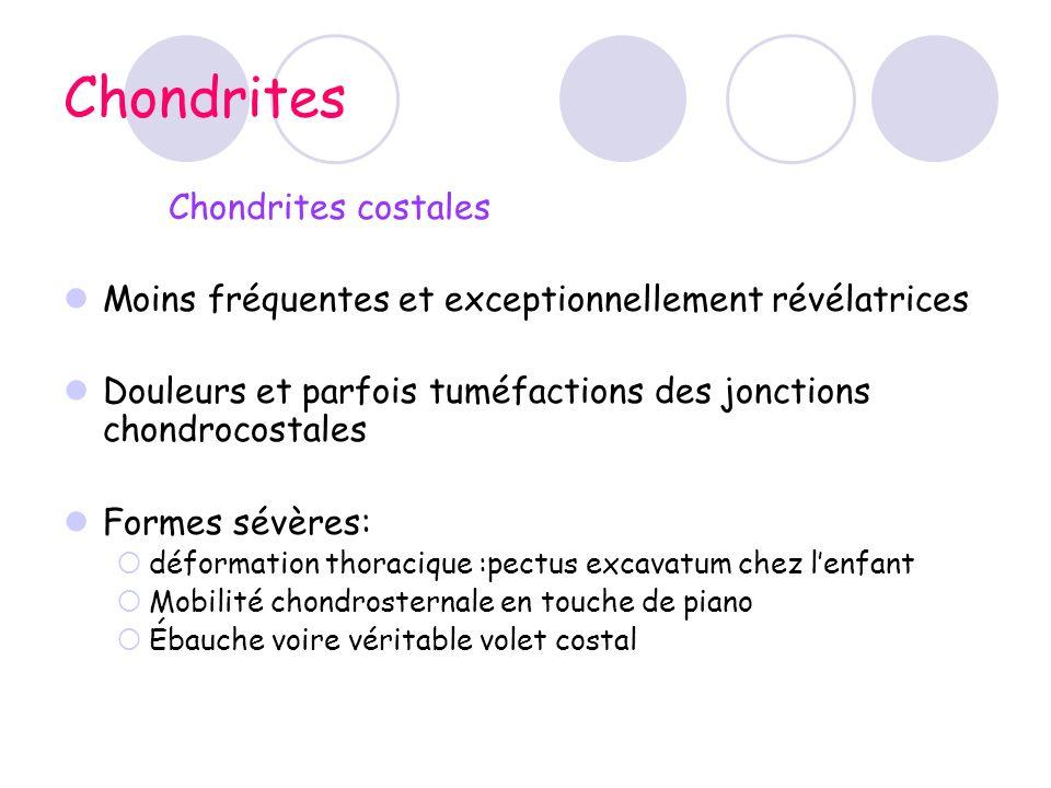 Chondrites Chondrites costales Moins fréquentes et exceptionnellement révélatrices Douleurs et parfois tuméfactions des jonctions chondrocostales Form