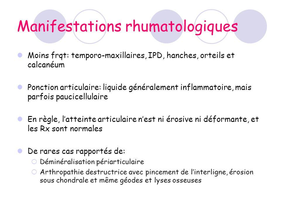 Manifestations rhumatologiques Moins frqt: temporo-maxillaires, IPD, hanches, orteils et calcanéum Ponction articulaire: liquide généralement inflamma