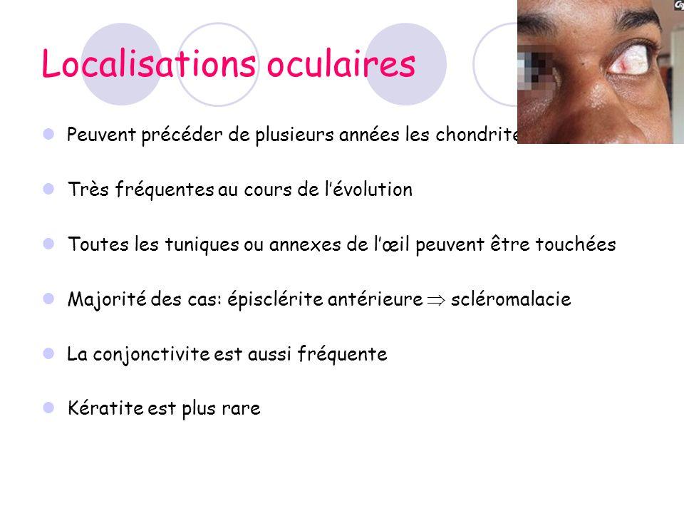 Localisations oculaires Peuvent précéder de plusieurs années les chondrites Très fréquentes au cours de lévolution Toutes les tuniques ou annexes de l