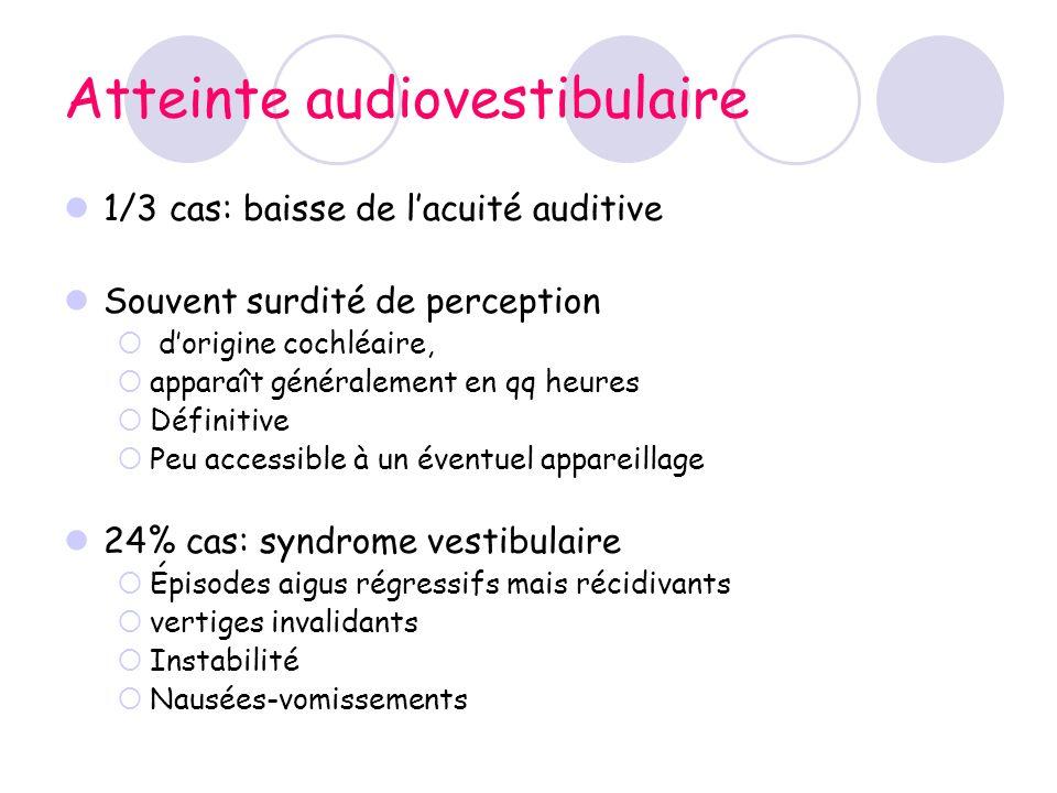 Atteinte audiovestibulaire 1/3 cas: baisse de lacuité auditive Souvent surdité de perception dorigine cochléaire, apparaît généralement en qq heures D