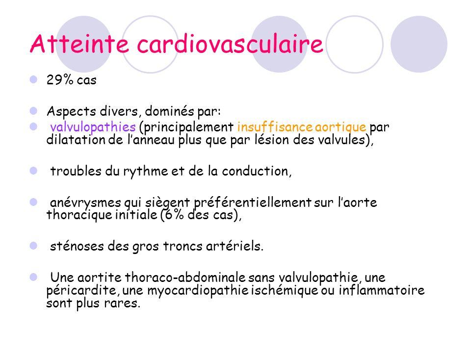 Atteinte cardiovasculaire 29% cas Aspects divers, dominés par: valvulopathies (principalement insuffisance aortique par dilatation de lanneau plus que