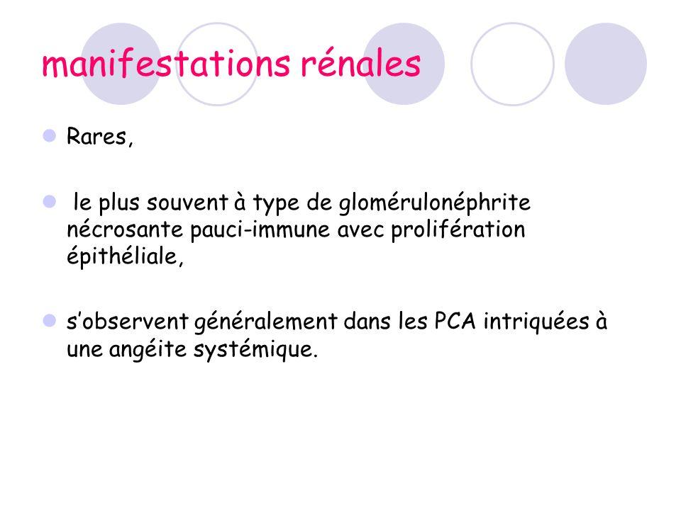 manifestations rénales Rares, le plus souvent à type de glomérulonéphrite nécrosante pauci-immune avec prolifération épithéliale, sobservent généralem