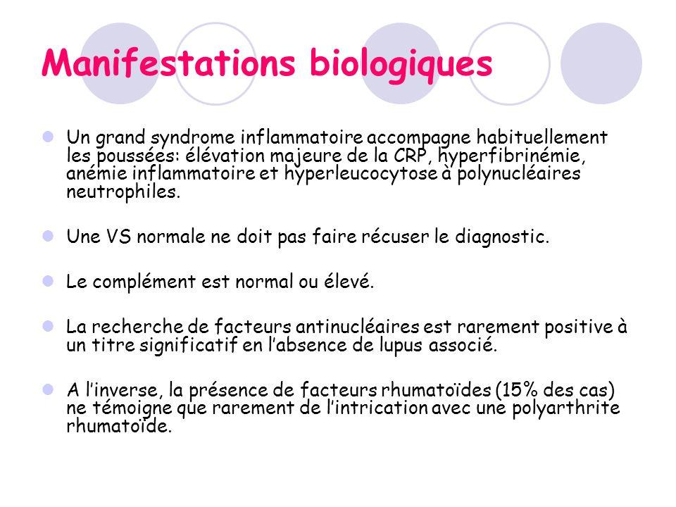 Manifestations biologiques Un grand syndrome inflammatoire accompagne habituellement les poussées: élévation majeure de la CRP, hyperfibrinémie, anémi