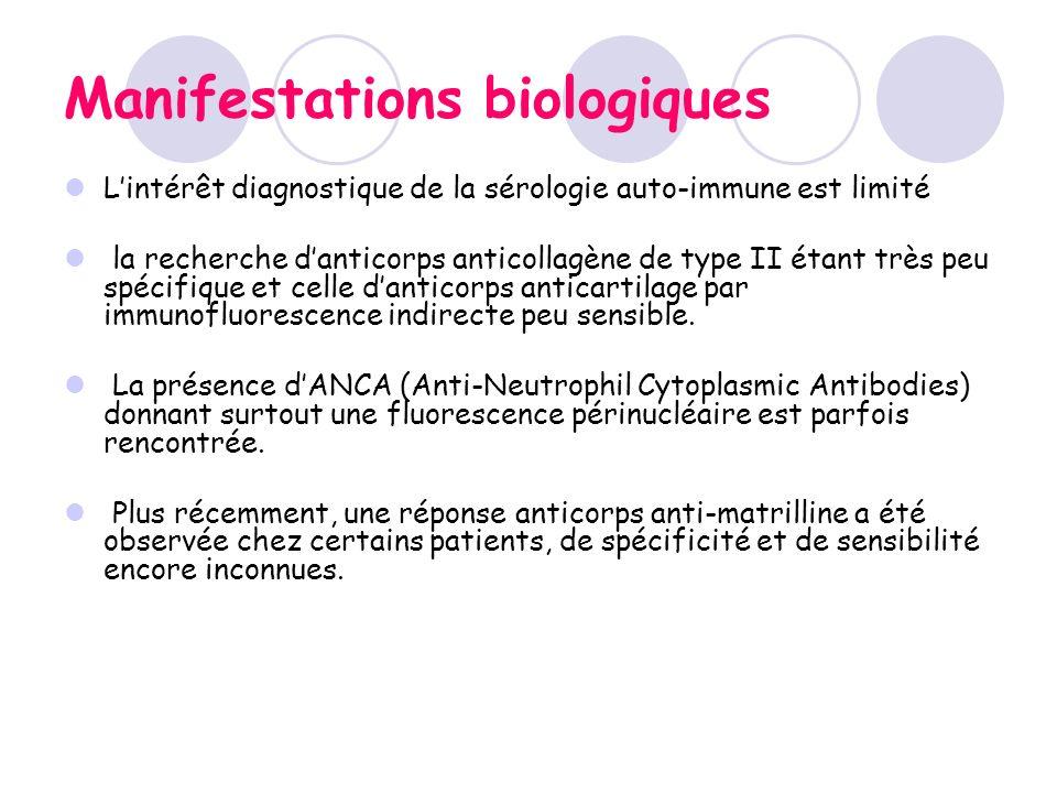 Manifestations biologiques Lintérêt diagnostique de la sérologie auto-immune est limité la recherche danticorps anticollagène de type II étant très pe