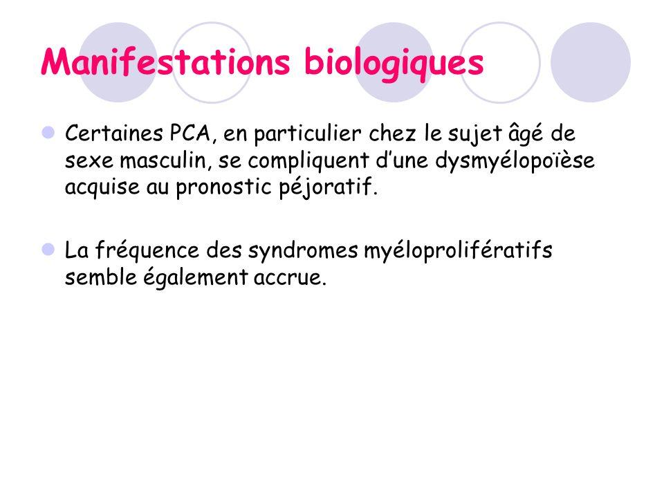 Manifestations biologiques Certaines PCA, en particulier chez le sujet âgé de sexe masculin, se compliquent dune dysmyélopoïèse acquise au pronostic p