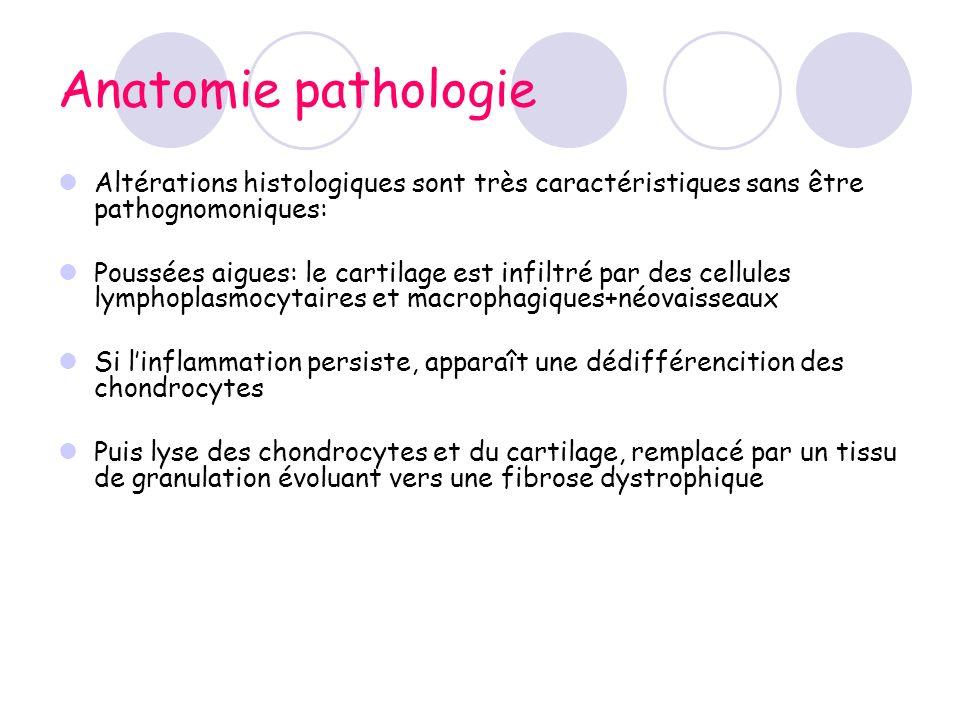 Anatomie pathologie Altérations histologiques sont très caractéristiques sans être pathognomoniques: Poussées aigues: le cartilage est infiltré par de