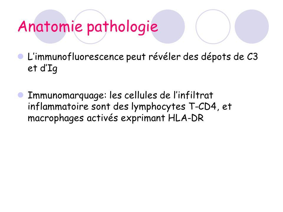 Anatomie pathologie Limmunofluorescence peut révéler des dépots de C3 et dIg Immunomarquage: les cellules de linfiltrat inflammatoire sont des lymphoc
