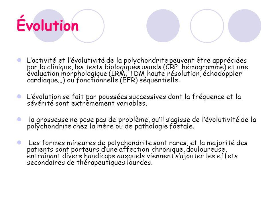 Évolution Lactivité et lévolutivité de la polychondrite peuvent être appréciées par la clinique, les tests biologiques usuels (CRP, hémogramme) et une