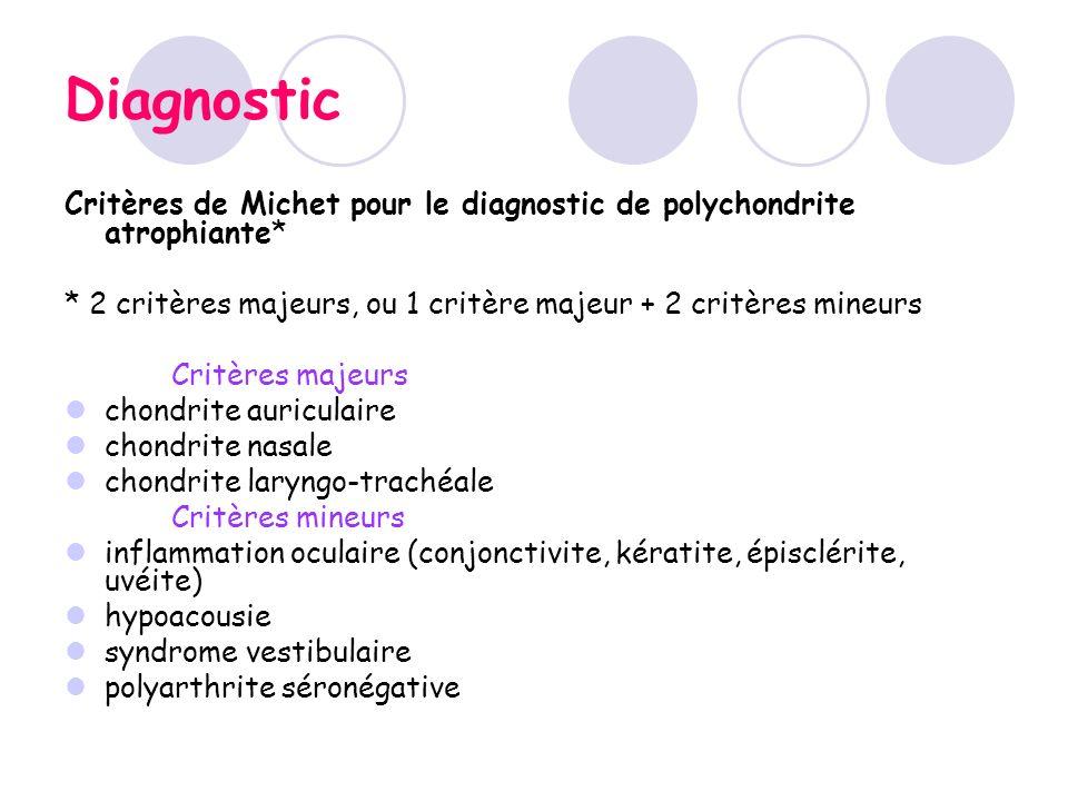 Diagnostic Critères de Michet pour le diagnostic de polychondrite atrophiante* * 2 critères majeurs, ou 1 critère majeur + 2 critères mineurs Critères