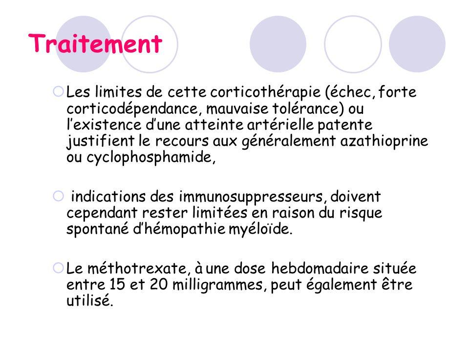Traitement Les limites de cette corticothérapie (échec, forte corticodépendance, mauvaise tolérance) ou lexistence dune atteinte artérielle patente ju