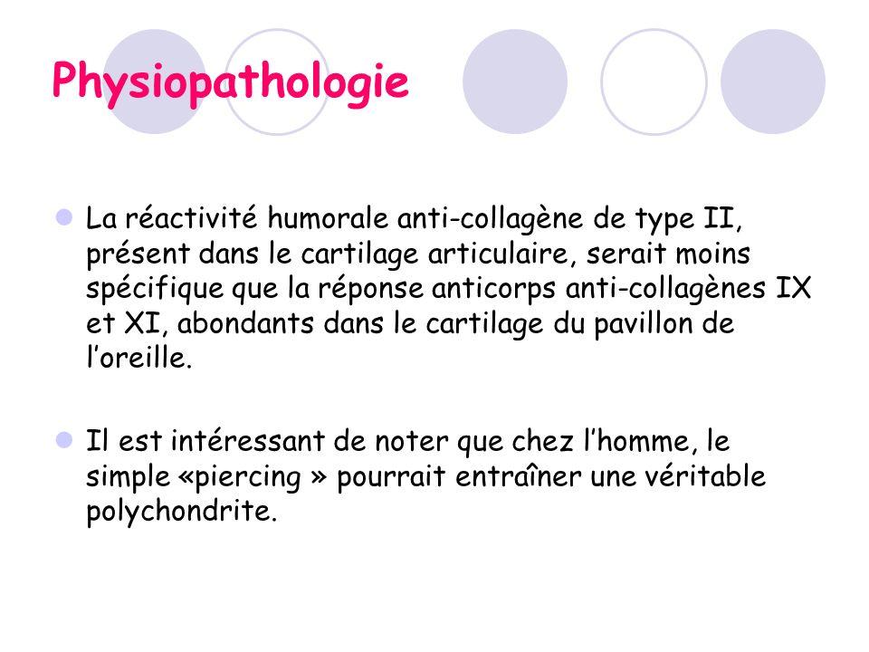 Physiopathologie La réactivité humorale anti-collagène de type II, présent dans le cartilage articulaire, serait moins spécifique que la réponse antic