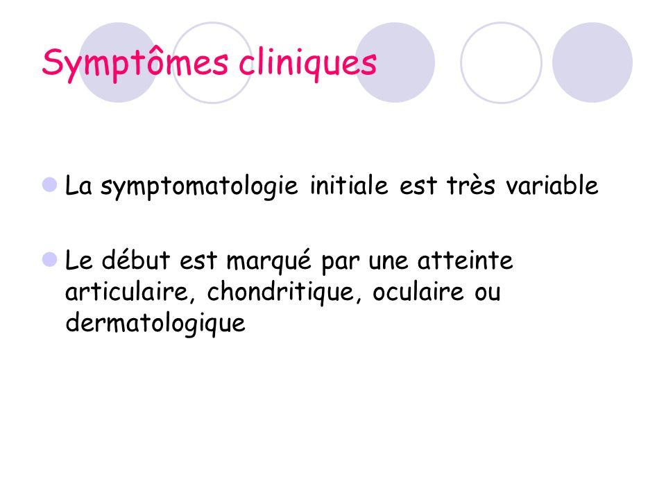 Symptômes cliniques La symptomatologie initiale est très variable Le début est marqué par une atteinte articulaire, chondritique, oculaire ou dermatol