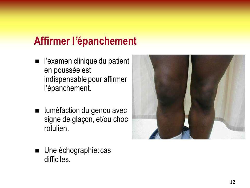 12 Affirmer l épanchement lexamen clinique du patient en poussée est indispensable pour affirmer lépanchement. tuméfaction du genou avec signe de glaç