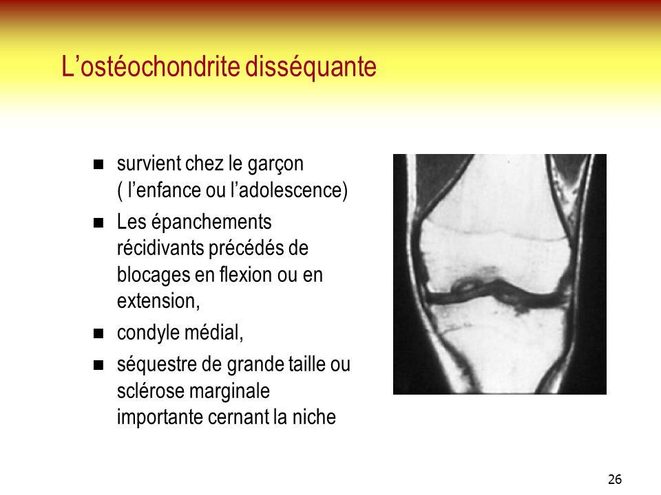 26 Lostéochondrite disséquante survient chez le garçon ( lenfance ou ladolescence) Les épanchements récidivants précédés de blocages en flexion ou en