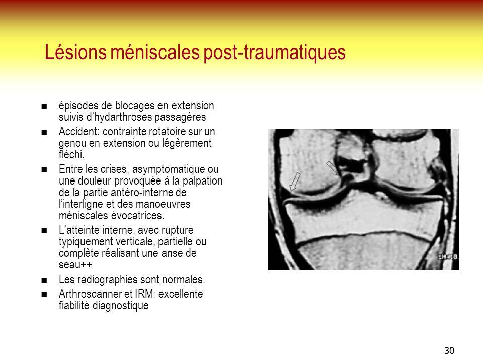 30 Lésions méniscales post-traumatiques épisodes de blocages en extension suivis dhydarthroses passagères Accident: contrainte rotatoire sur un genou