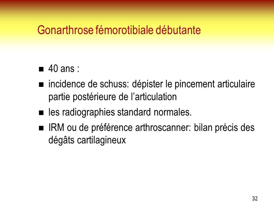 32 Gonarthrose fémorotibiale débutante 40 ans : incidence de schuss: dépister le pincement articulaire partie postérieure de larticulation les radiogr
