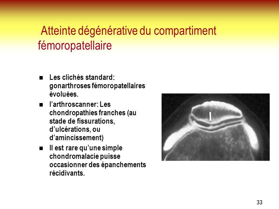 33 Atteinte dégénérative du compartiment fémoropatellaire Les clichés standard: gonarthroses fémoropatellaires évoluées. larthroscanner: Les chondropa