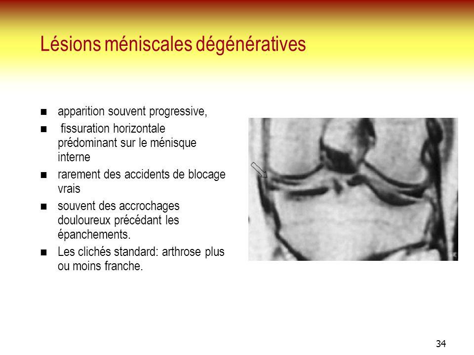 34 Lésions méniscales dégénératives apparition souvent progressive, fissuration horizontale prédominant sur le ménisque interne rarement des accidents