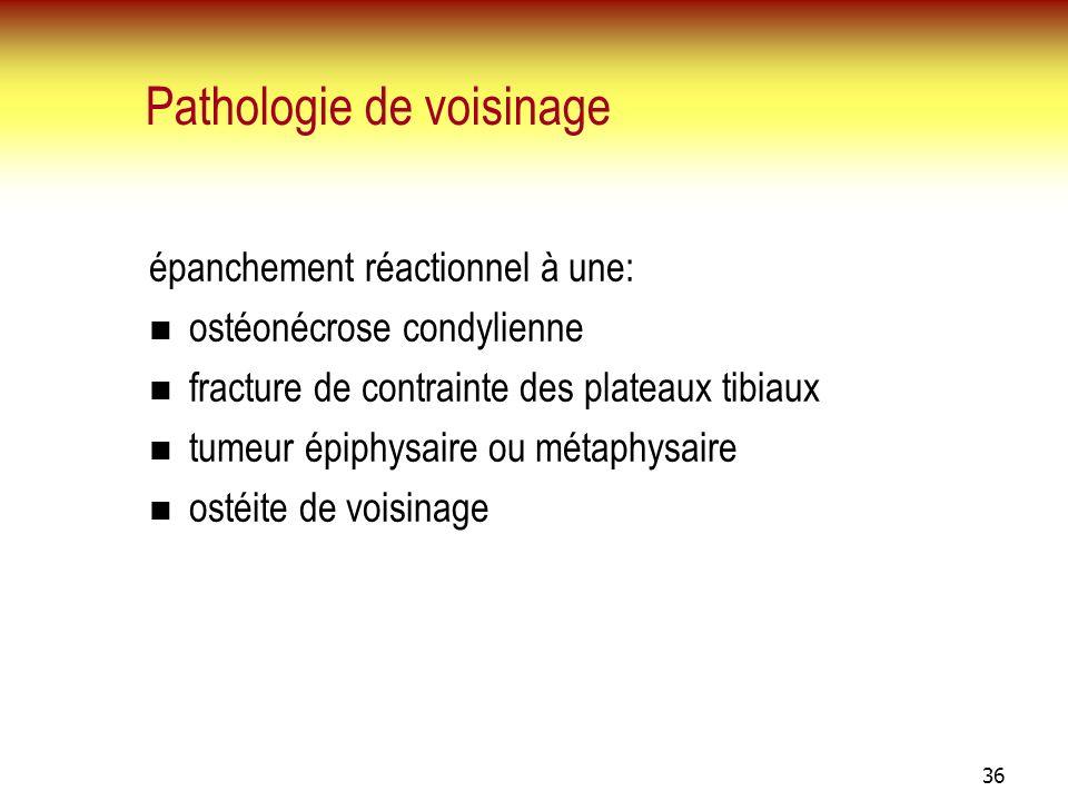 36 Pathologie de voisinage épanchement réactionnel à une: ostéonécrose condylienne fracture de contrainte des plateaux tibiaux tumeur épiphysaire ou m