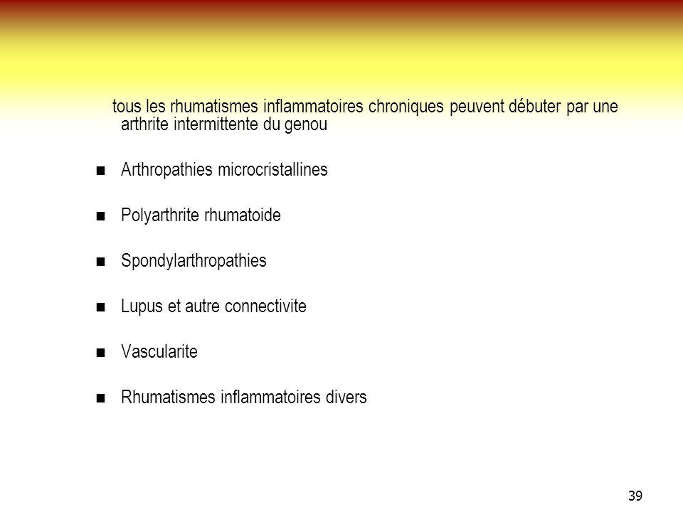 39 tous les rhumatismes inflammatoires chroniques peuvent débuter par une arthrite intermittente du genou Arthropathies microcristallines Polyarthrite