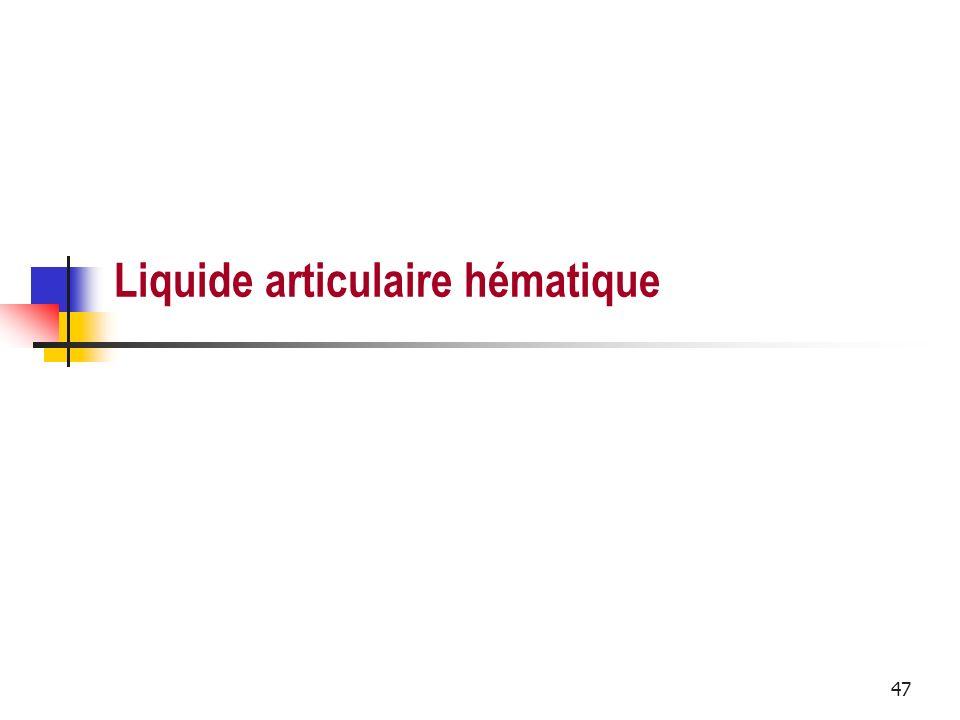 47 Liquide articulaire hématique