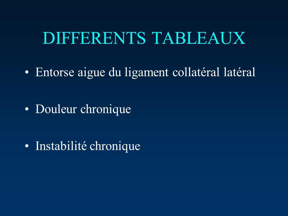 DIFFERENTS TABLEAUX Entorse aigue du ligament collatéral latéral Douleur chronique Instabilité chronique