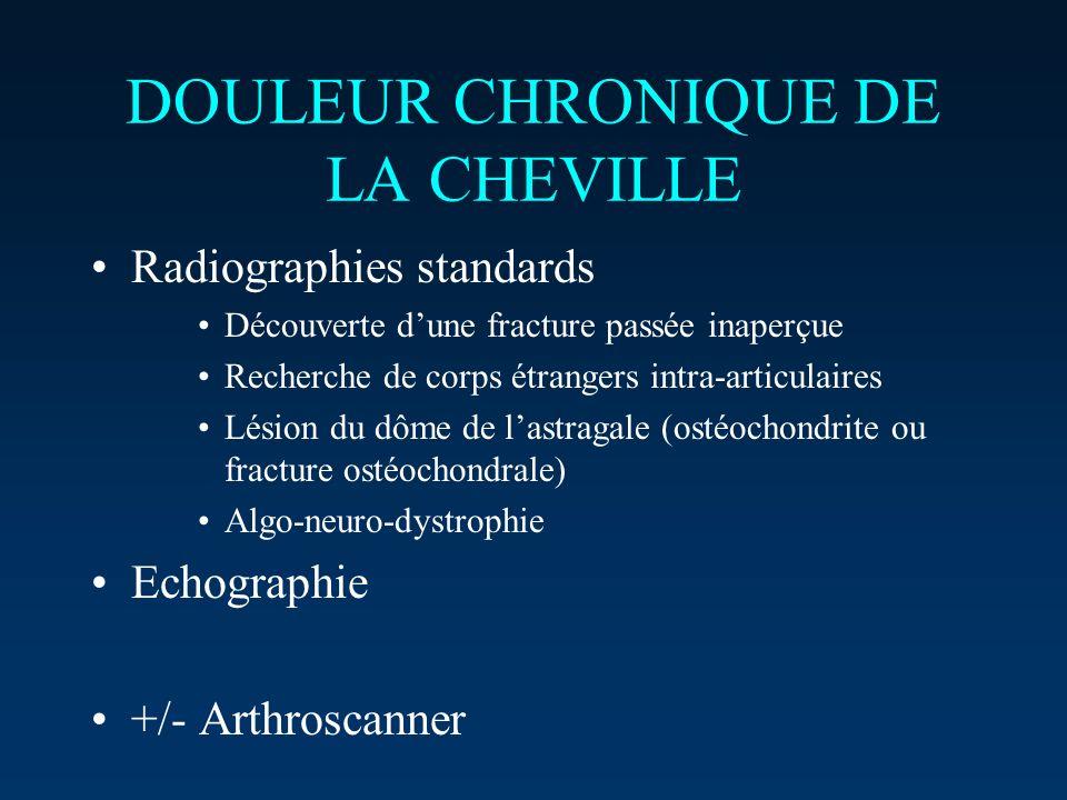 DOULEUR CHRONIQUE DE LA CHEVILLE Radiographies standards Découverte dune fracture passée inaperçue Recherche de corps étrangers intra-articulaires Lés