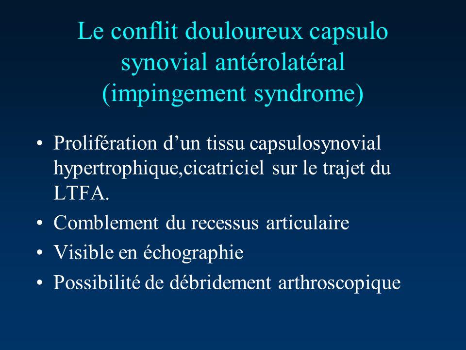 Le conflit douloureux capsulo synovial antérolatéral (impingement syndrome) Prolifération dun tissu capsulosynovial hypertrophique,cicatriciel sur le