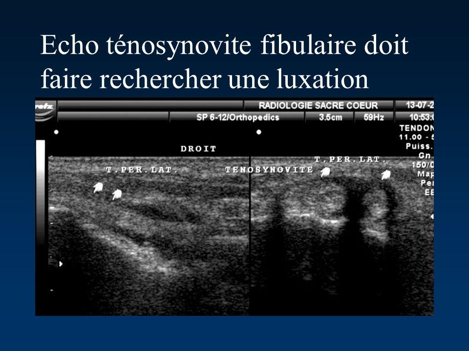 Echo ténosynovite fibulaire doit faire rechercher une luxation