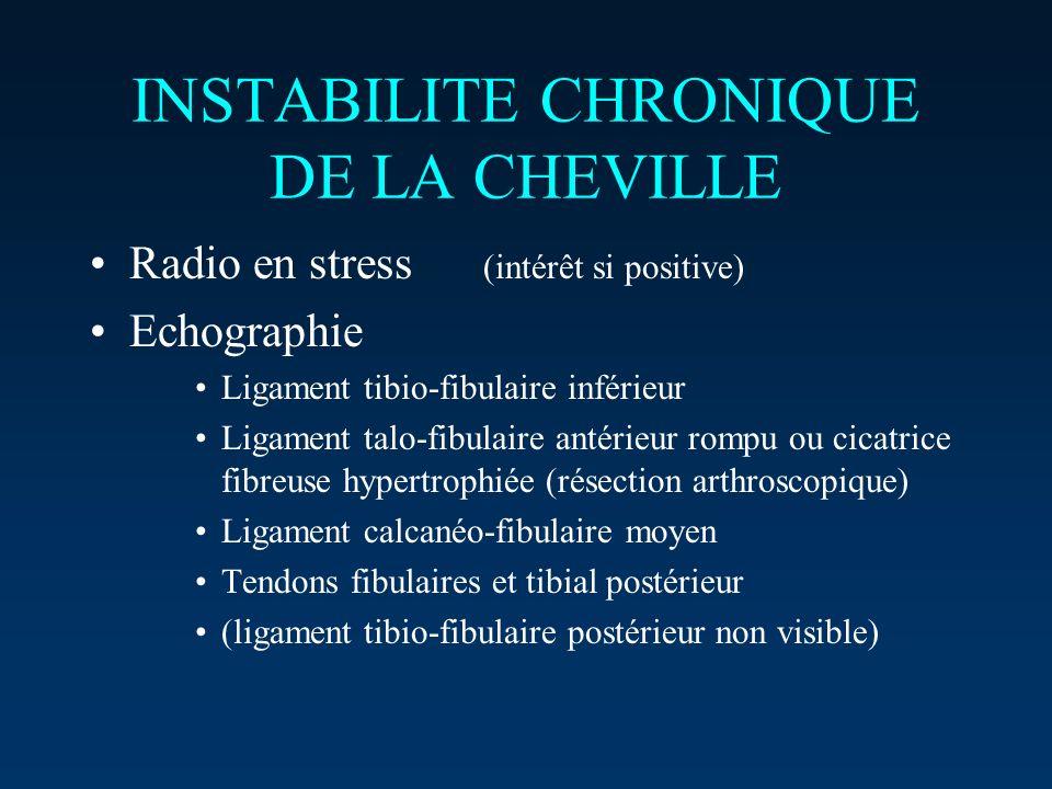 INSTABILITE CHRONIQUE DE LA CHEVILLE Radio en stress (intérêt si positive) Echographie Ligament tibio-fibulaire inférieur Ligament talo-fibulaire anté
