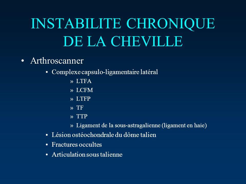 INSTABILITE CHRONIQUE DE LA CHEVILLE Arthroscanner Complexe capsulo-ligamentaire latéral »LTFA »LCFM »LTFP »TF »TTP »Ligament de la sous-astragalienne