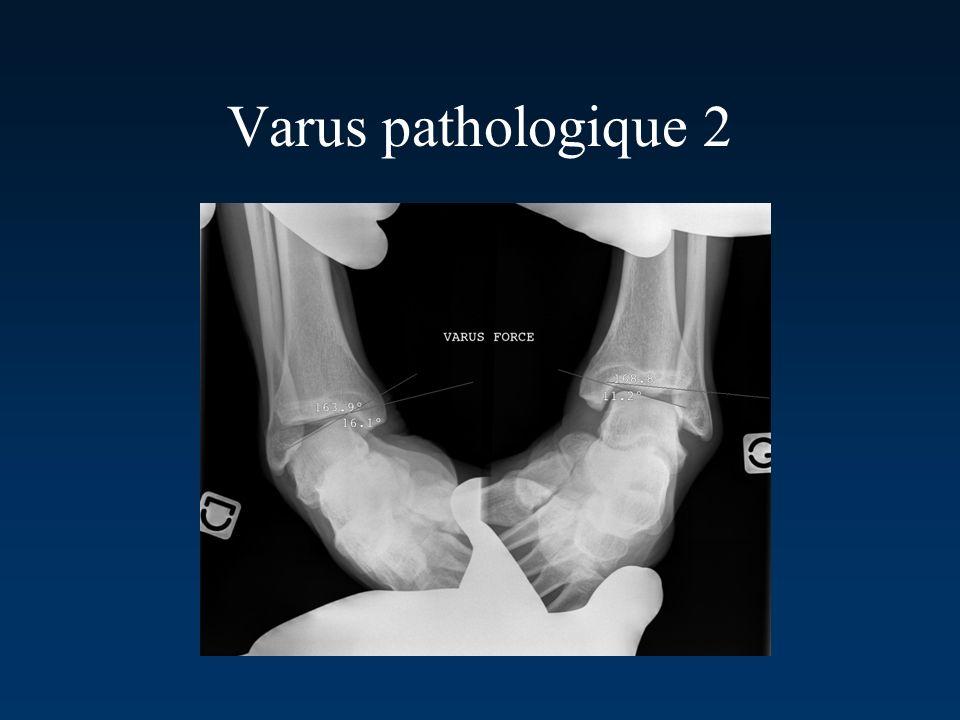 Varus pathologique 2