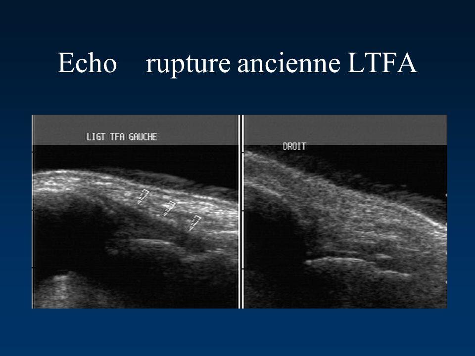 Echo rupture ancienne LTFA