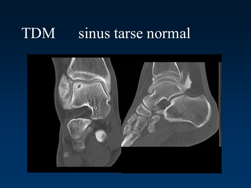TDM sinus tarse normal