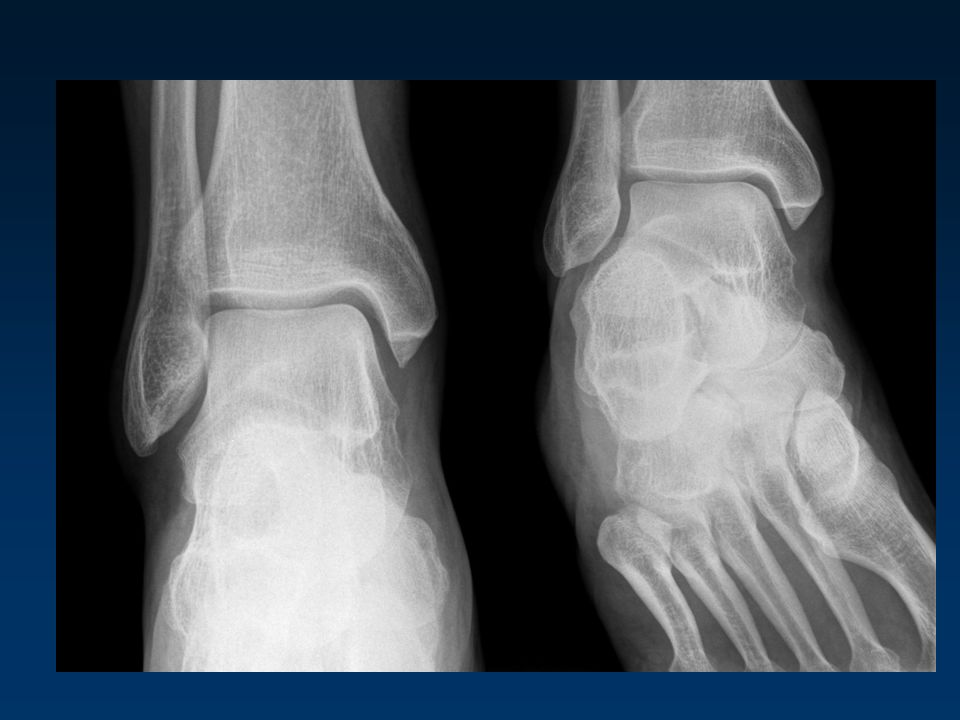 Le conflit douloureux capsulo synovial antérolatéral (impingement syndrome) Prolifération dun tissu capsulosynovial hypertrophique,cicatriciel sur le trajet du LTFA.