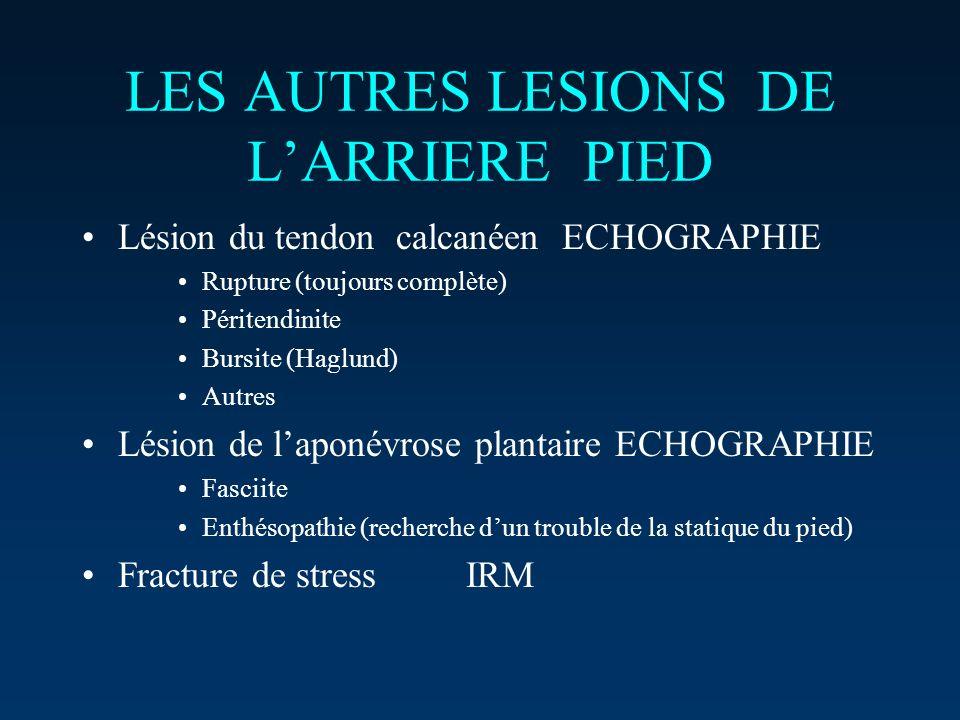 LES AUTRES LESIONS DE LARRIERE PIED Lésion du tendon calcanéenECHOGRAPHIE Rupture (toujours complète) Péritendinite Bursite (Haglund) Autres Lésion de