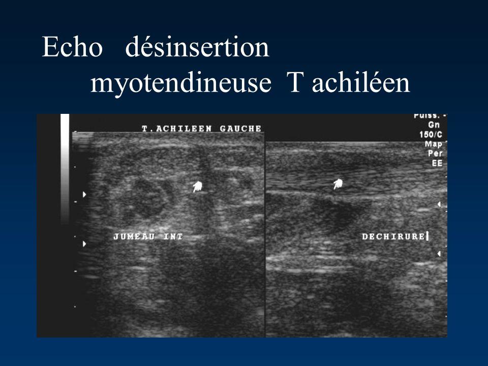 Echo désinsertion myotendineuse T achiléen
