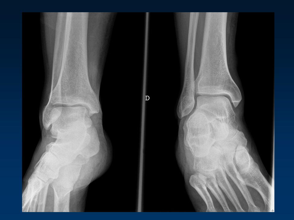 LES LESIONS RARES Fractures de fatigue Muscle surnuméraire (tibial postérieur) Lésion du plantaire grêle Thrombo-phlébite de la voûte