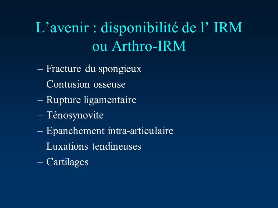 Lavenir : disponibilité de l IRM ou Arthro-IRM –Fracture du spongieux –Contusion osseuse –Rupture ligamentaire –Ténosynovite –Epanchement intra-articu
