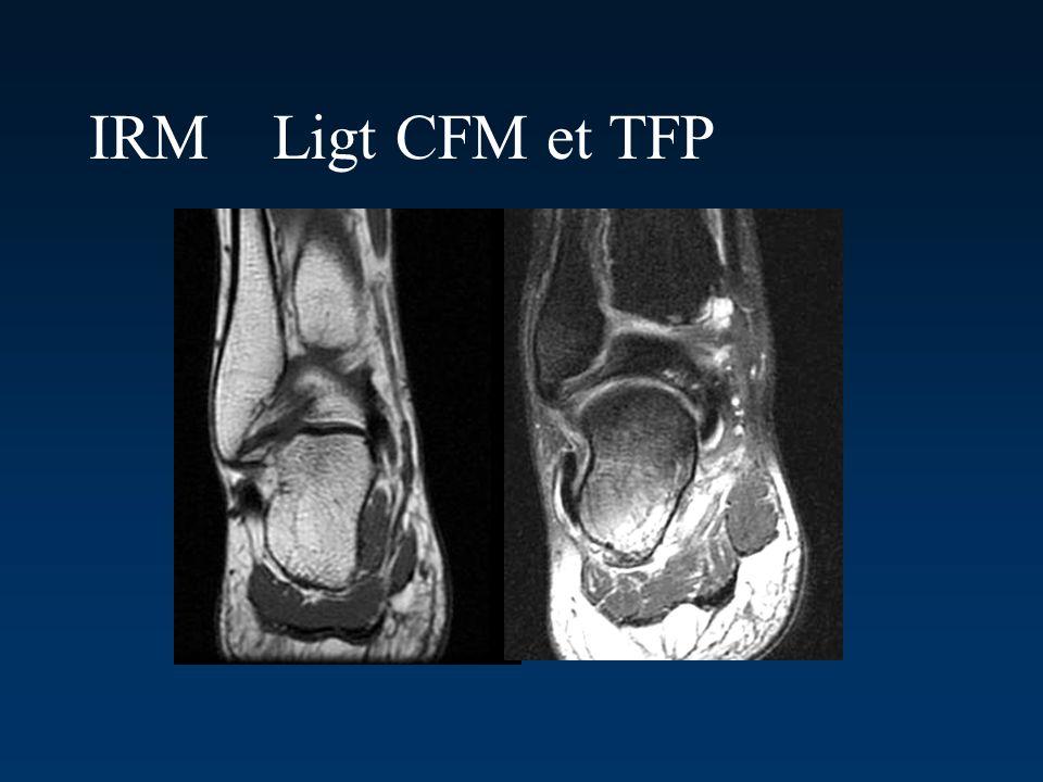 IRM Ligt CFM et TFP