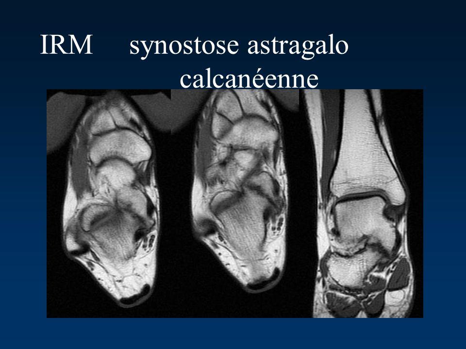 IRM synostose astragalo calcanéenne